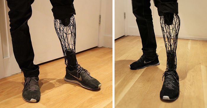 Prosthetic Limbs: 3D Printed